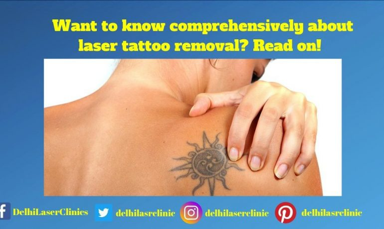 Want To Know Comprehensively about Laser Tattoo Removal? Read on!