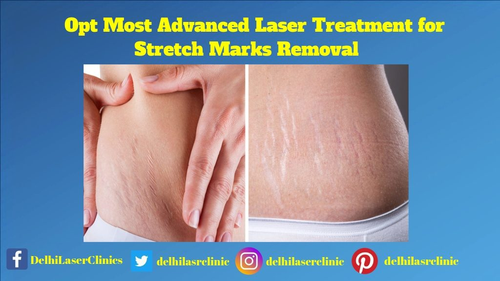 Opt Most Advanced Laser Treatment for Stretch Marks Removal