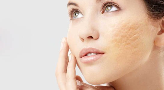 Learn about the two most effective Acne Scar Removal Treatments