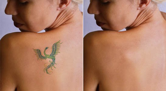 Laser tattoo removal: How effective is it?