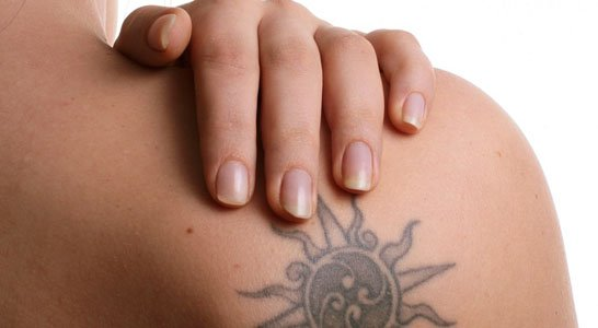 Learn About Tattoo Removal Technique via Lasers