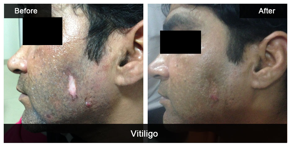 Vitiligo can now be treated well with Laser Technology