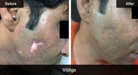 What is Vitiligo Precisely and How Can it be Treated?